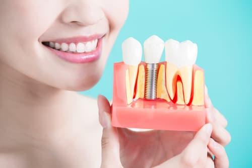 How are dental implants done step by step