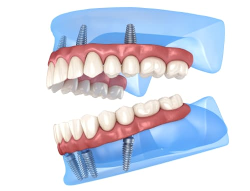 What are All-on-4 dental implants made of
